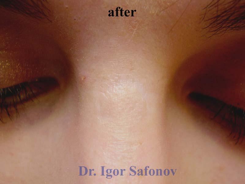 Нормотрофический рубец после лечения