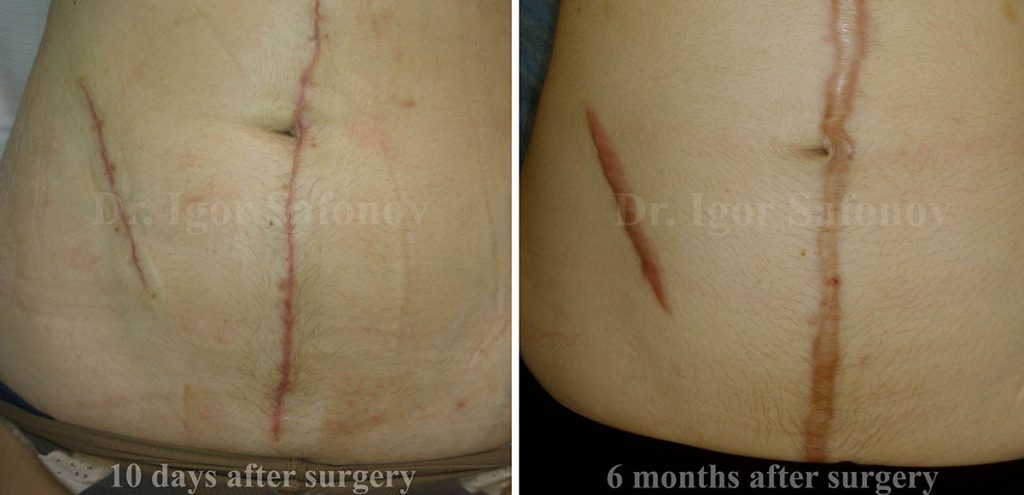 Normotrophic Scars Treatment And Correction Site Of Dr