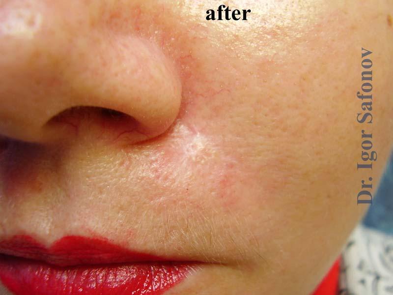 (Русский) Гипертрофический рубец на лице после лечения